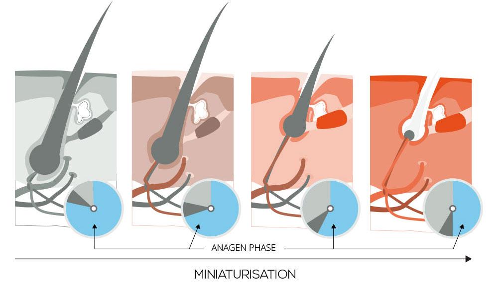 Miniaturisation - Anagen Phase