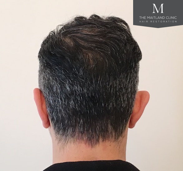 Client before and after
