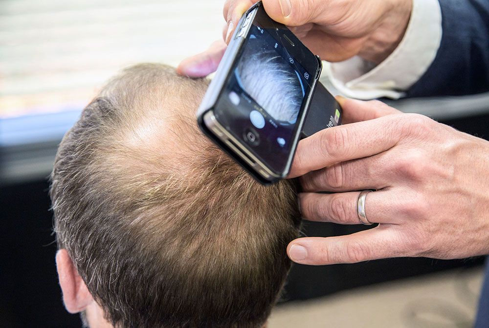 How hair loss occurs
