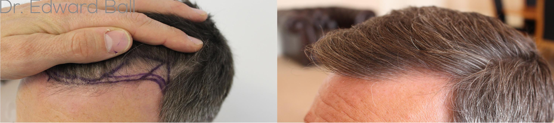 Dr Edward Ball 1100 FUE left hairline