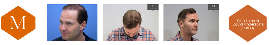 David Anderson's hair transplant story - click to read more