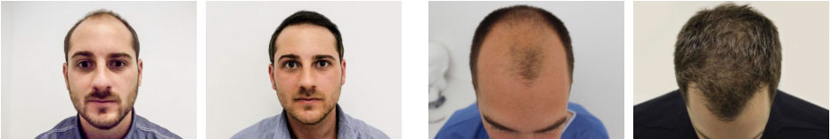 Hair Loss Clinic Watford - Before and After Photos