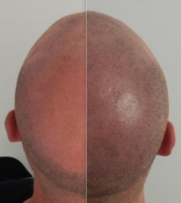 Learn about scalp trichopigmentation (STP) & scalp micropigmentation (SMP) – by Janna Shafer