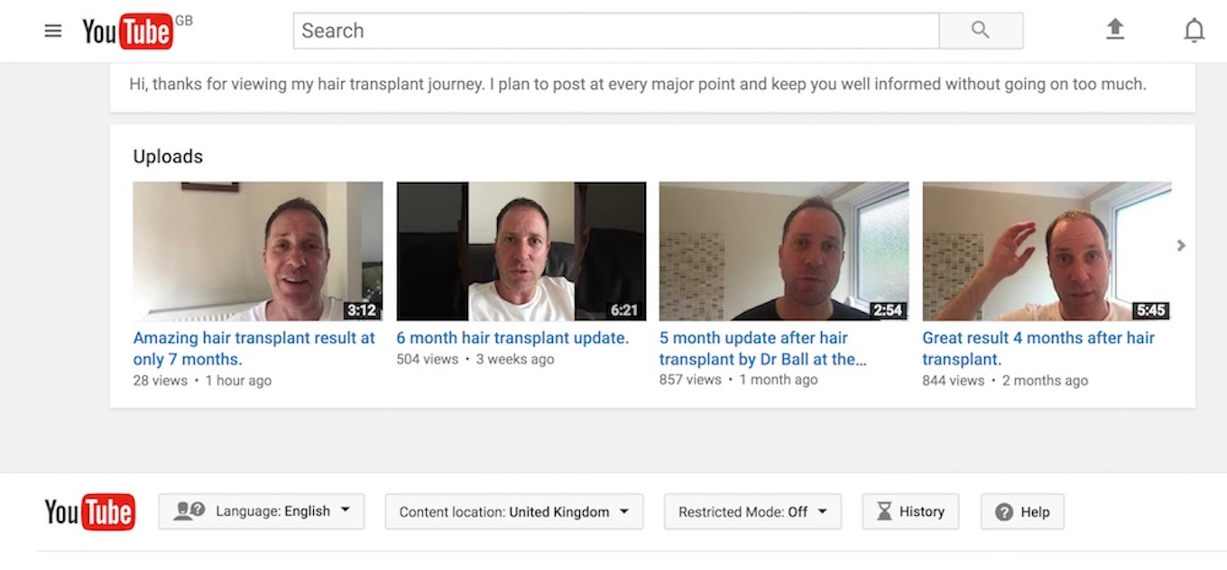23rd June 2017 – Follow Sig G's video blog of his hair transplant journey