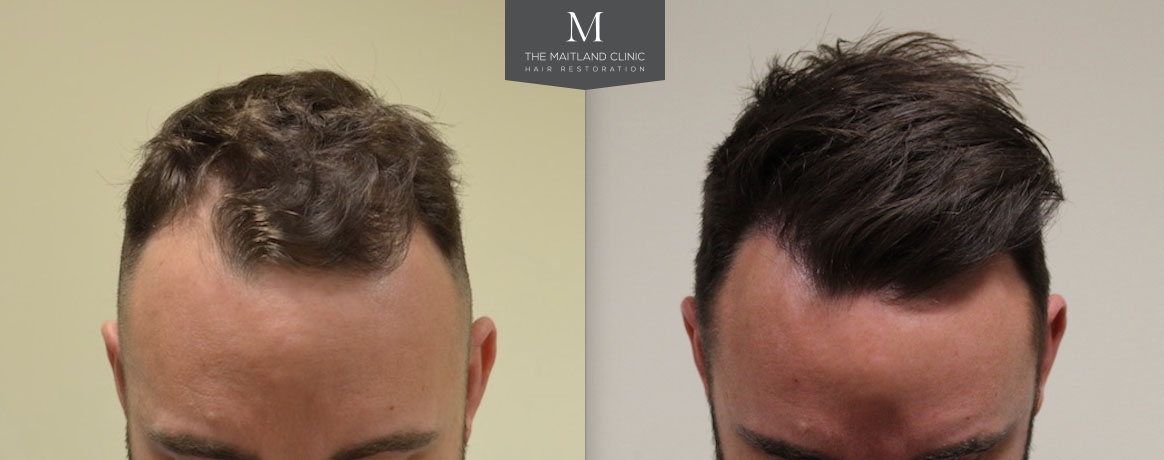 14th July 2017 – FUE Hairline Restoration 1502 Grafts 10 Months Post Op