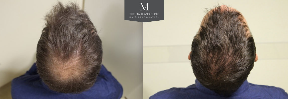 16th August 2017- FUE Hair Transplant 1349 Grafts Into Crown