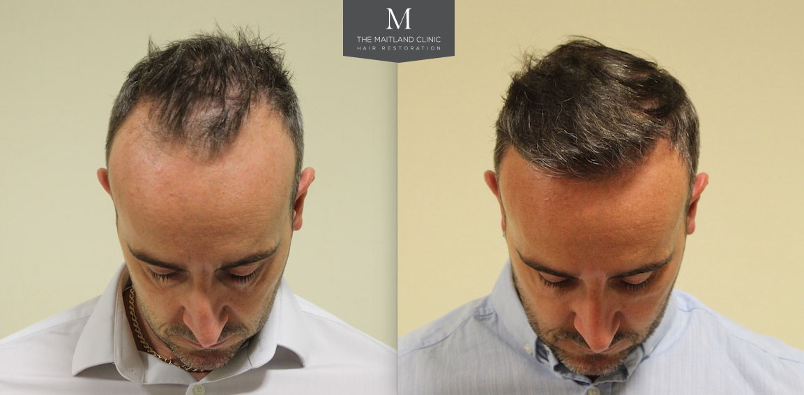 18th August 2017- FUE Hair Transplant 2162 Grafts Hairline Lowering 8 Months Post Op