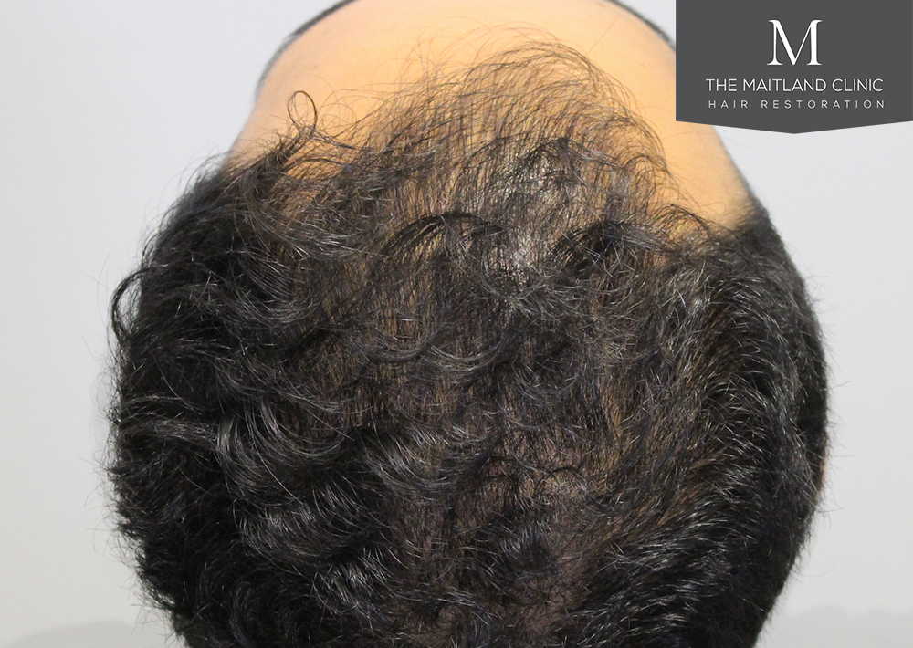 PRP hair treatment results platelet rich plasma