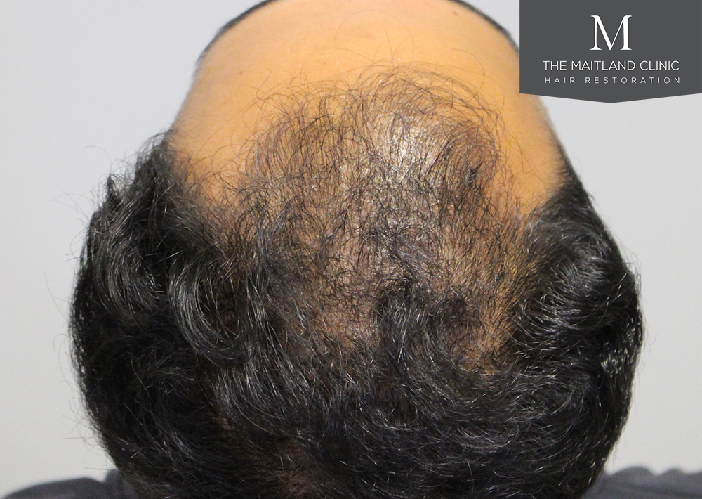PRP hair restoration treatment Platelet rich plasma