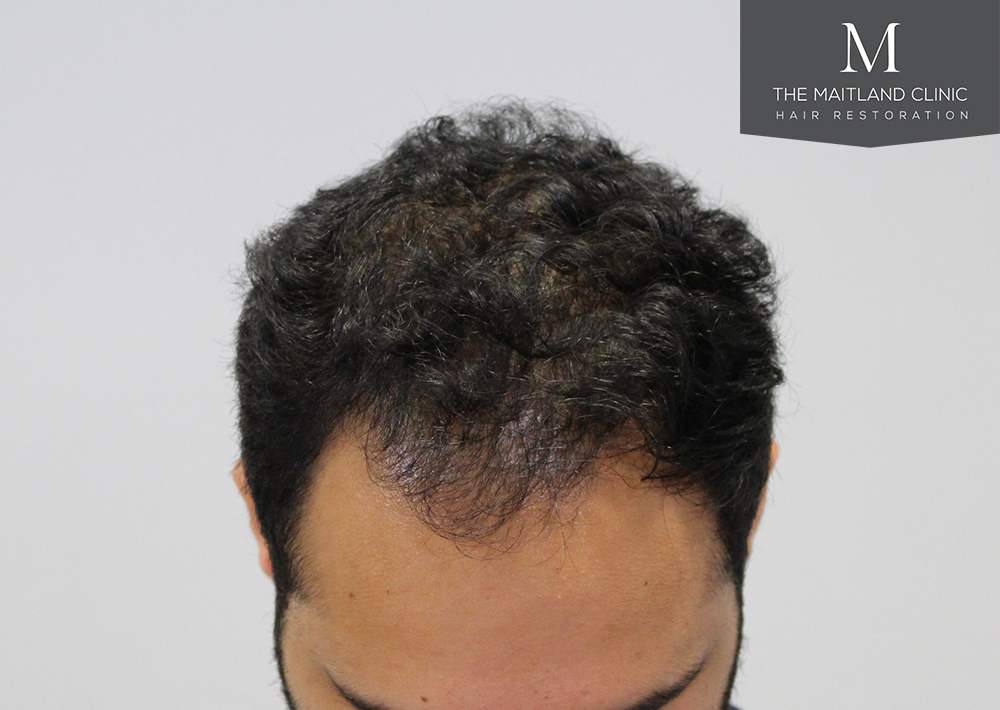 PRP Platelet rich plasma treatment hair restoration results