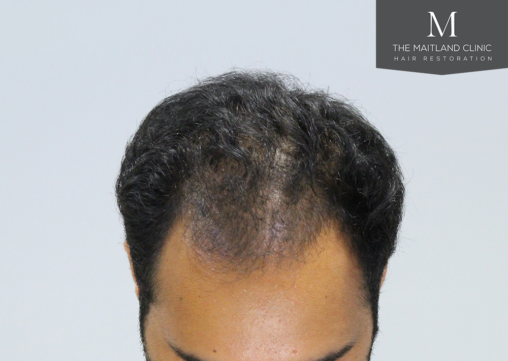 PRP treatment Platelet Rich Plasma Hair Restoration