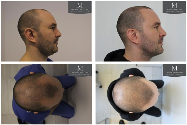 Does an FUE hair transplant leave scars