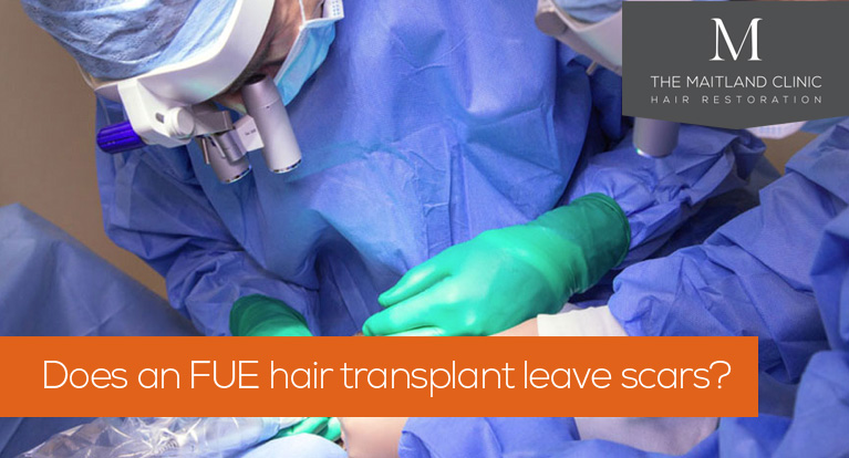 Does an FUE hair transplant leave scars? (And 5 more common questions about FUE)