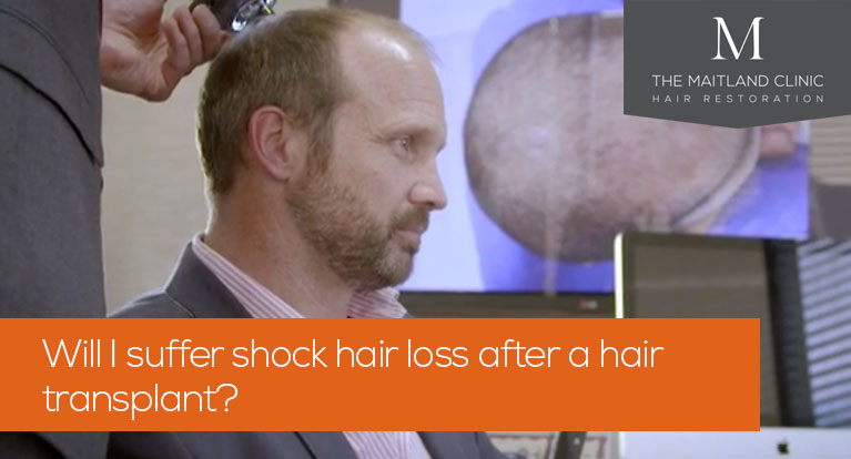 Will I suffer shock hair loss after a hair transplant?