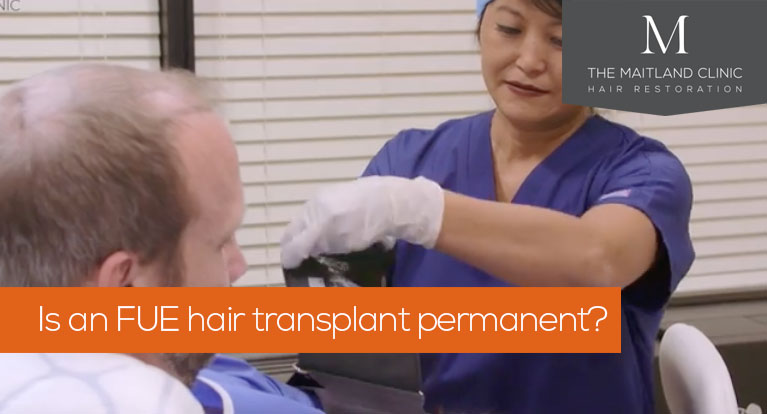 Is an FUE hair transplant permanent? + more questions to ask before having a procedure