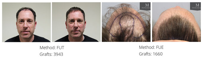 Is an FUE hair transplant permanent