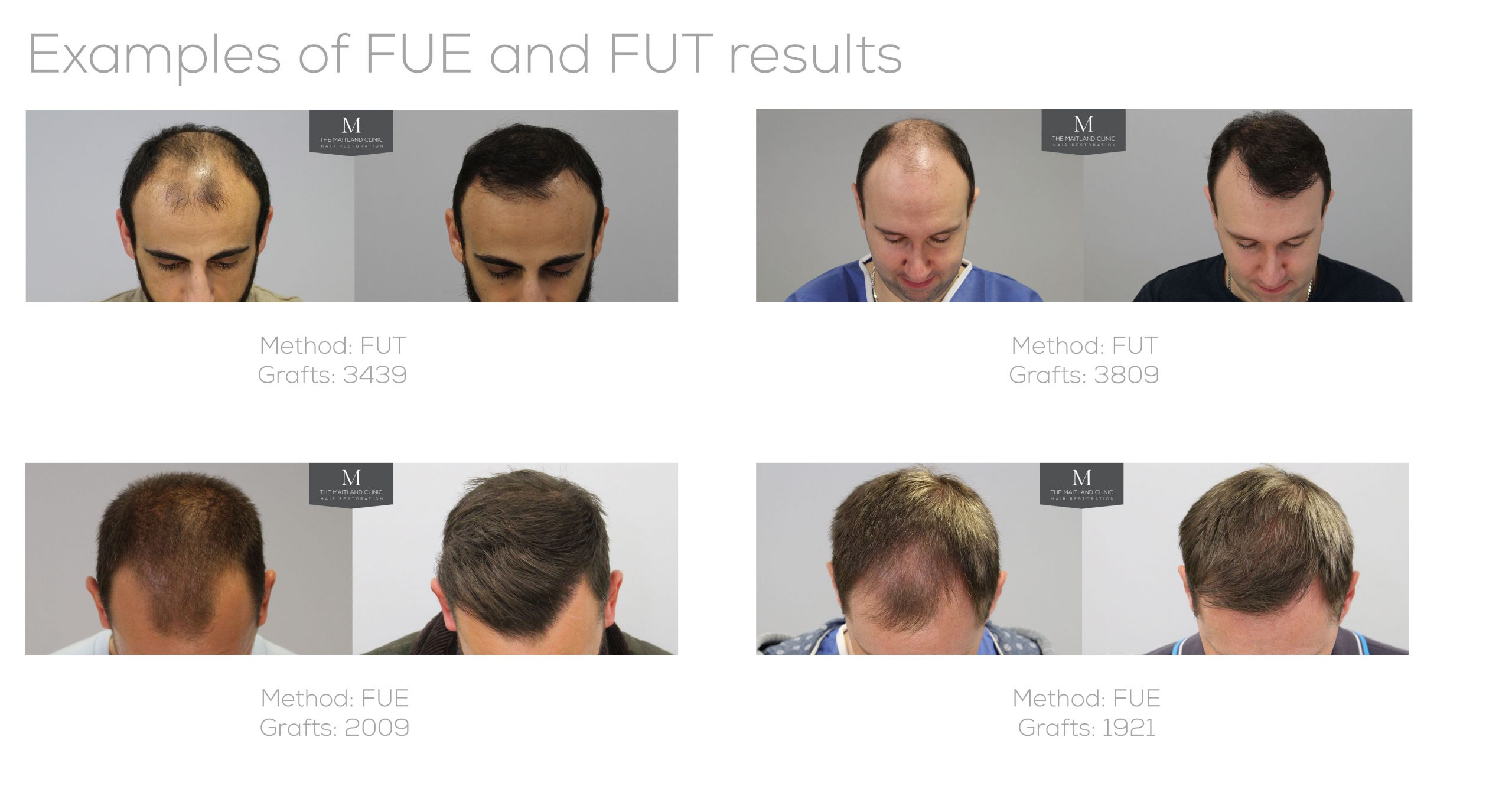 The difference between FUE and FUT hair transplant