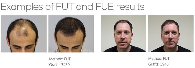 What is the difference between FUT and FUE hair transplants