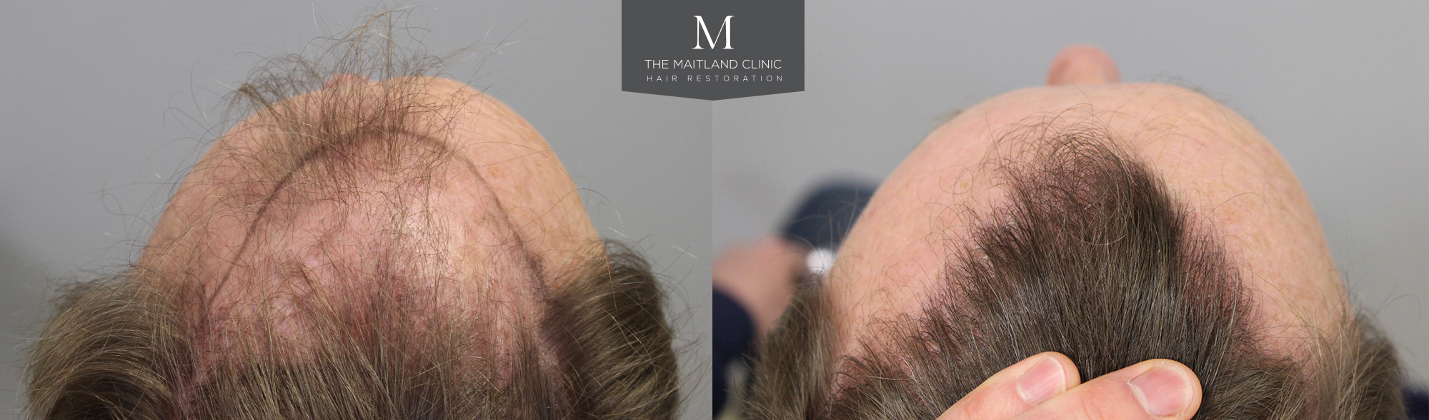 Natural looking hairline after hair transplant surgery