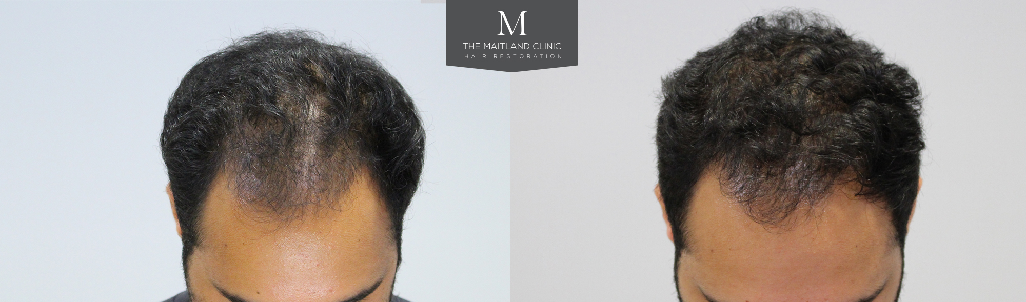 Before and after PRP treatment The Maitland Clinic
