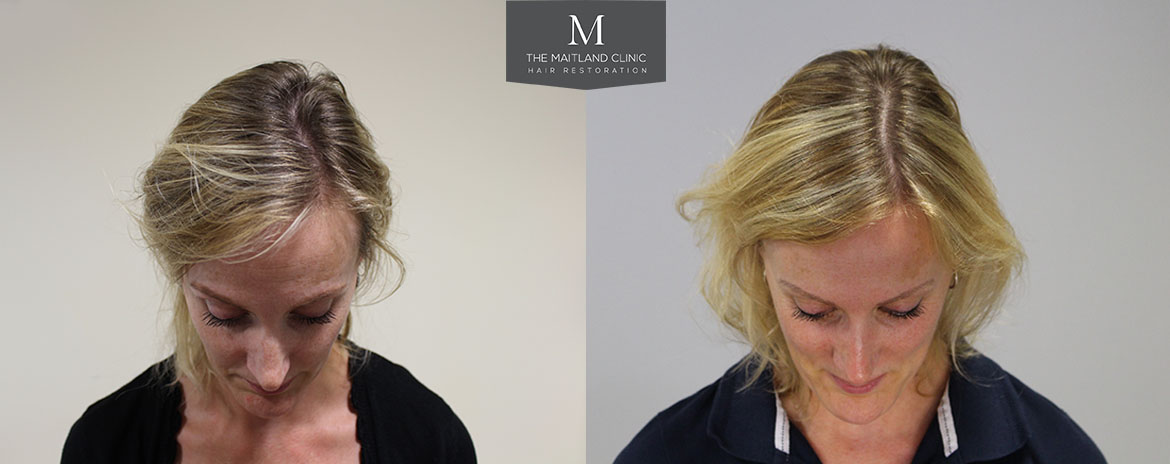 Before and after PRP treatment for hair loss