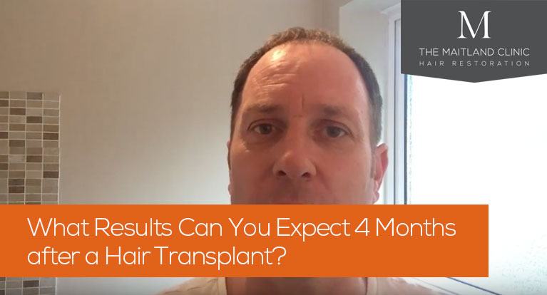 What results can you expect 4 months after a hair transplant?
