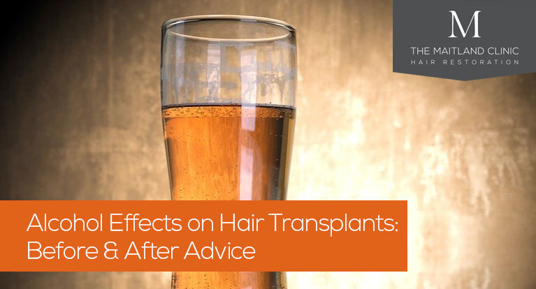 Can I drink alcohol before or after a hair transplant? The effects of drinking