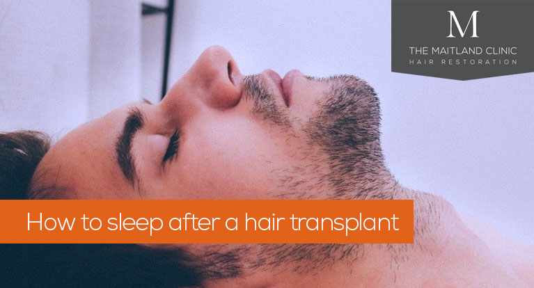 How to sleep after a hair transplant