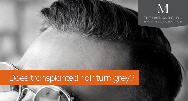 Does transplanted hair turn grey?